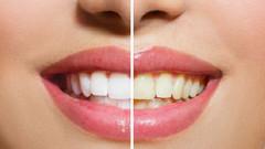 Diş plaklarından kurtulmanın ucuz ve bilimsel yolu