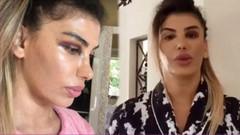 Şarkıcı Hatice'den gözüne yumruk yedi iddiasına videolu yanıt