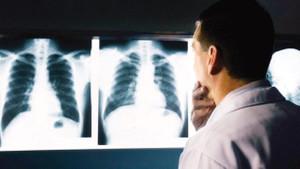 ERÜ Tıp Fakültesi'nde 12 röntgen teknisyeni troid kanseri oldu iddiası