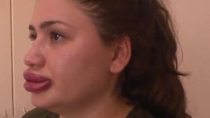 Dudak mağduru Merve Keleş'in suçladığı kişi konuştu: Zaten alkol almıştık