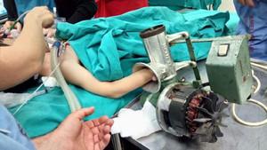 5 yaşındaki çocuğun eli, kıyma makinesine sıkıştı
