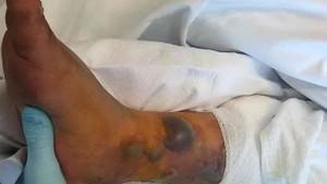 Dövme yaptıran genç adam hayatını kaybetti