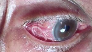 Gittiği doktorda gözünde 15 santimetrelik bir solucan olduğunu öğrendi!