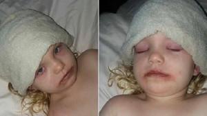 Oyuncak makyaj seti küçük kızı hastanelik etti
