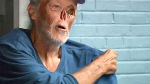 Kanseri yendi, insanları yenemedi! Yüzündeki yaralardan ötürü restorandan kovulan adamın yaşadıkları