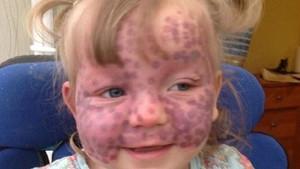 Çocuğun yüzündeki morlukların nedenini öğrendiklerinde yıkıldılar