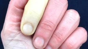 Ünlü sunucunun farklı renkteki parmakları