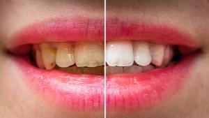 Dişlerinizi saniyeler içinde beyazlatacak ipuçları