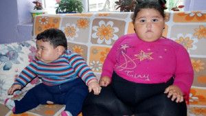 2,5 yaşındaki Semanur 55, kardeşi 9 aylık Yılmaz Buğra 25 kilo