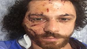 Kadıköy'deki saldırıda oyuncu Oral Özer'e ağır dayak