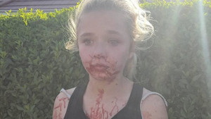 Boksör Jade Binch 11 yaşındaki kızı bu hale getirdi!