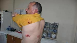 Gezgin Fatih Koparan 10 kişinin saldırısına uğradı: Defalarca 155'i aradım...