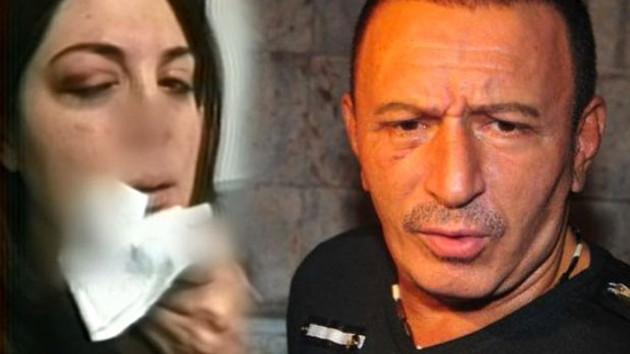 Mustafa Topaloğlu eşini yumruklayıp hastanelik etti