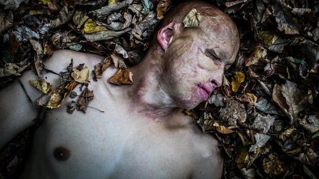 Babası tarafından yanan sobaya atılan Lyoska'nın üzücü hikayesi
