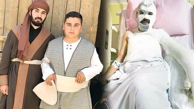 TRT Dizisi setinde yanan oyuncunun fotoğrafı paylaşıldı