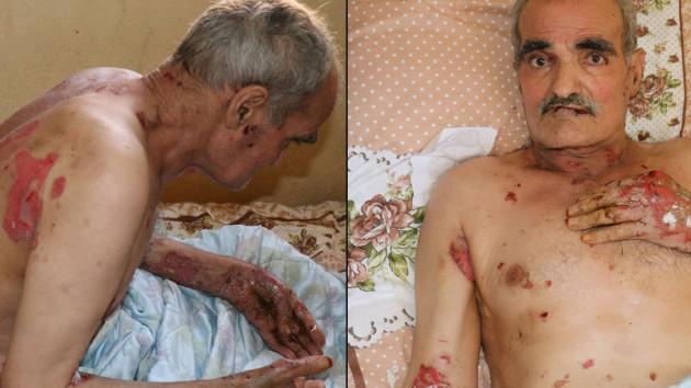 Vücudunu ve ağzının içini saran yaralar kabusu oldu! Suriyeli adamın yürek yakan feryadı