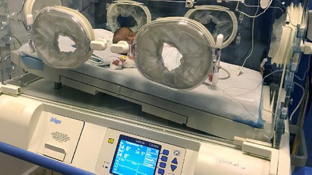 Rusya Türkiye'ye yenidoğanların tedavisine yönelik yoğun bakım kuvözü ve medikal cihaz tedarik etti