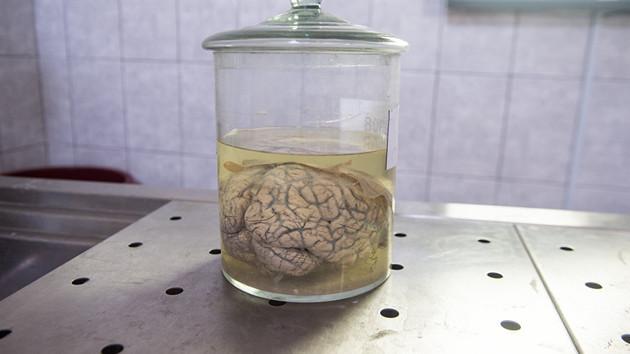 60 yıldır yarım beyinle yaşamış!