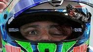 Massa'nın yarış hayatı bitecek mi? Sağlık durumu nasıl?