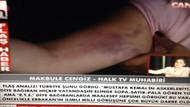 Halk Tv muhabiri canlı yayında kolundaki morlukları gösterdi!