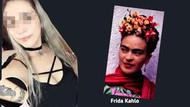 Lazer epilasyonda Frida'sını kaybetti