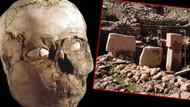 Göbeklitepe'de esrarengiz kafatasları! Dünyada ilk olabilir