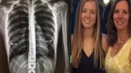 Kızının röntgenini görünce çıldırdı!