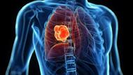 Her yıl 50 bin kişi akciğer kanseri oluyor