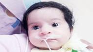 2 aylık Dicle bebek nefes alamıyor
