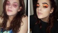 Instagram'daki en anlamlı before-after fotoğrafı