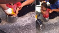 2 yaşındaki çocuk düdüklü tencereye sıkıştı
