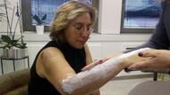 Estetisyen doktora beyzbol sopalı saldırı