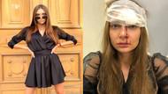 Dudaklarına silikon yaptırmak isteyen Rus şarkıcı Valentina Sidorova'ya doktoru saldırdı!