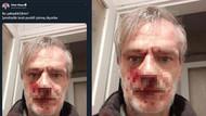 MHP'li vekil darp edilen yazarın fotoğrafını paylaştı, hakaret etti