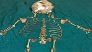 Ölü bebeğini 36 yıl karnında taşıdı!