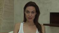 Angelina Jolie 39 yaşında suçiçeği çıkardı