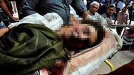 Suruç saldırısında şok gelişme! Karnında bomba pimi bulundu