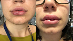 İstanbul'da dudak dolgusu yaptıran genç kızın hayatı karardı