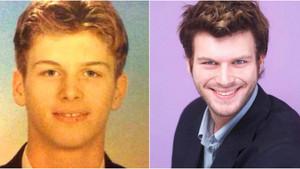 Sadece diş estetiğiyle bambaşka bir insana dönüşen ünlüler