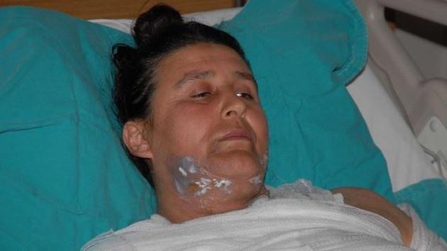 Bursa'da kocasının sevgilisinin saldırısına uğradı