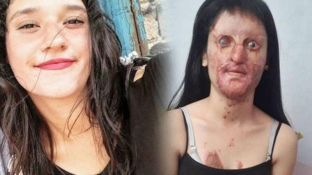 Berfin Özek: Bir erkeğe hayır dediğim için yüzüm yakıldı