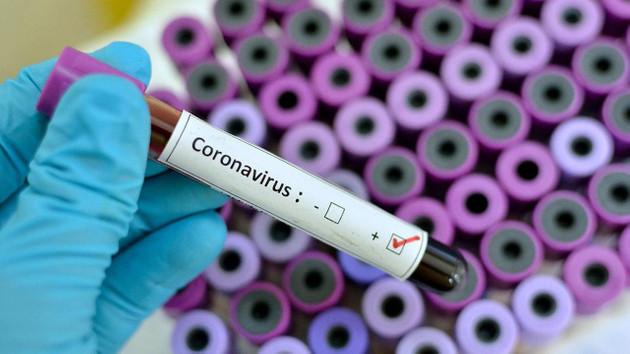 Prof. Dr. Zeki Kılıçaslan: Koronavirüs Mayıs'ta zirve yapacak