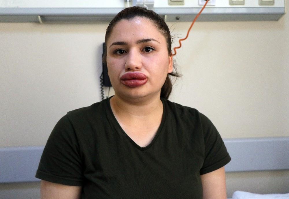 Slikon mağduru hemşire konuştu: Çok korkuyorum