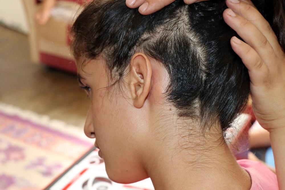 10 yaşındaki Derya'nın tek umudu 15 bin liralık biyonik kulaklık!