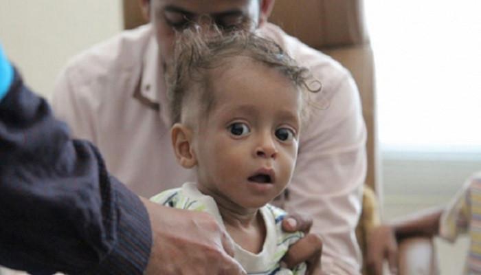 Dünya Sağlık Örgütü'nden Hudeyde uyarısı