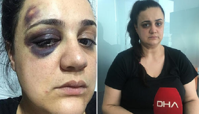 Yaşadığı dehşeti anlattı: Evde cımbız yok diye beni dövdü